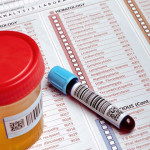 Drug Testing Employees: 4 Factors to Consider