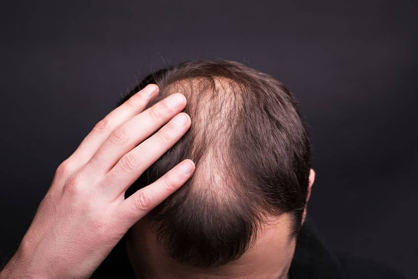 Tips on How to Grow Your Hair Transplant Business